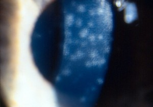 photo of white blood cells on back surface of cornea from uveitis