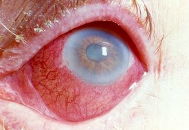 Gonorrhea in the Eye