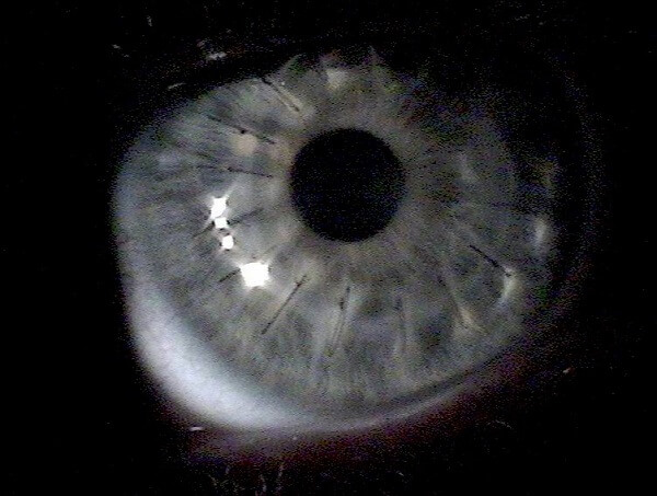 close up of eye with stitches from corneal transplant