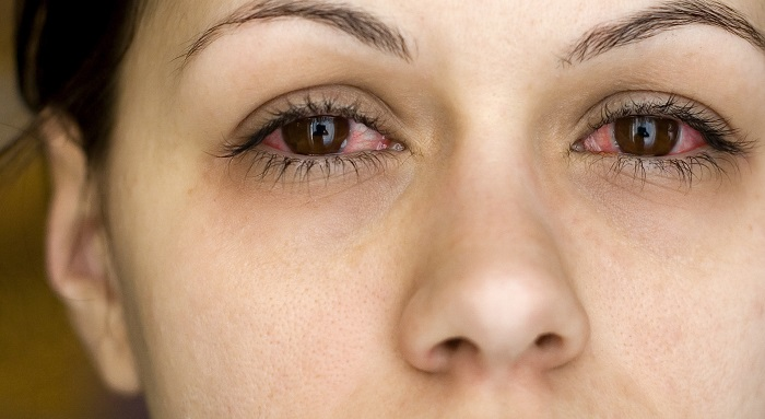 woman experiencing woman with allergic conjunctivitis symptoms