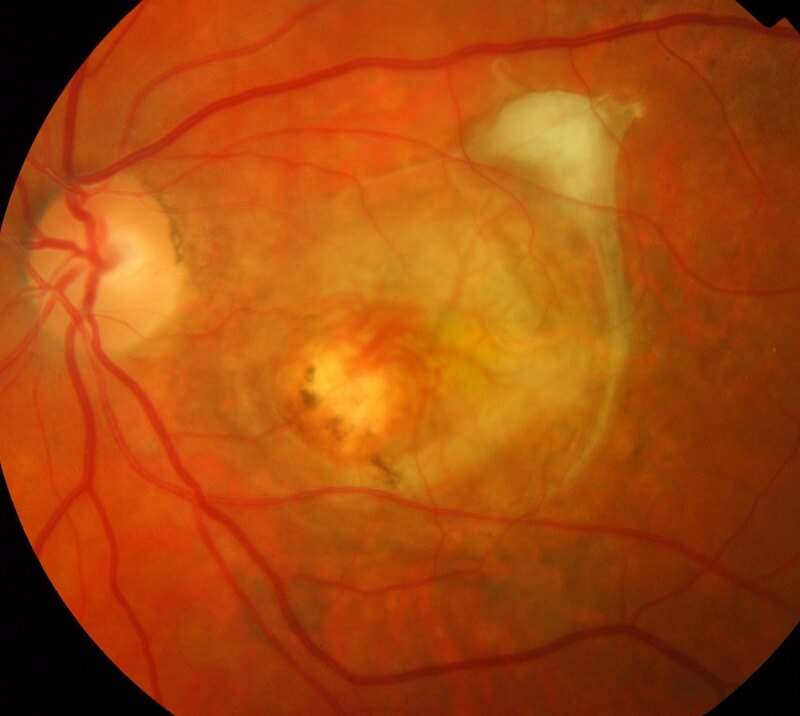 Retina of an individual suffering from Degenerative Myopia