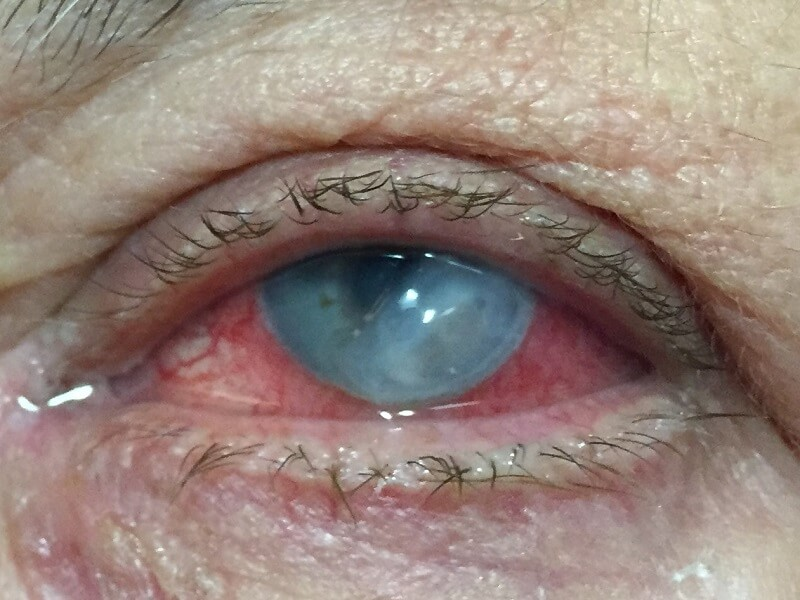 Bacterial Keratitis in the left eye