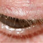 Treating and Preventing a Bacterial Eye Infection