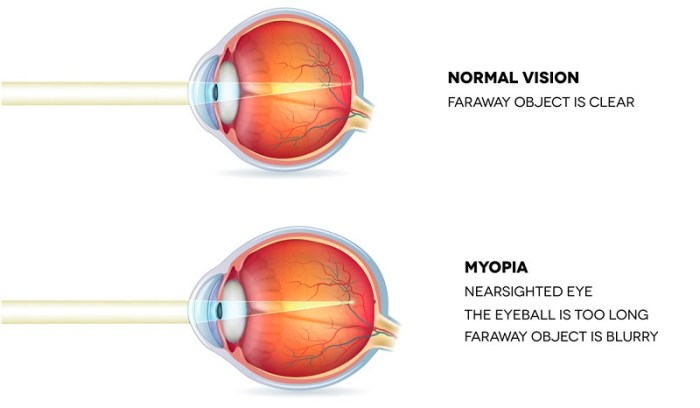 the difference between normal vision and myopia