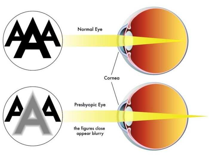 vision problem caused by presbyopia