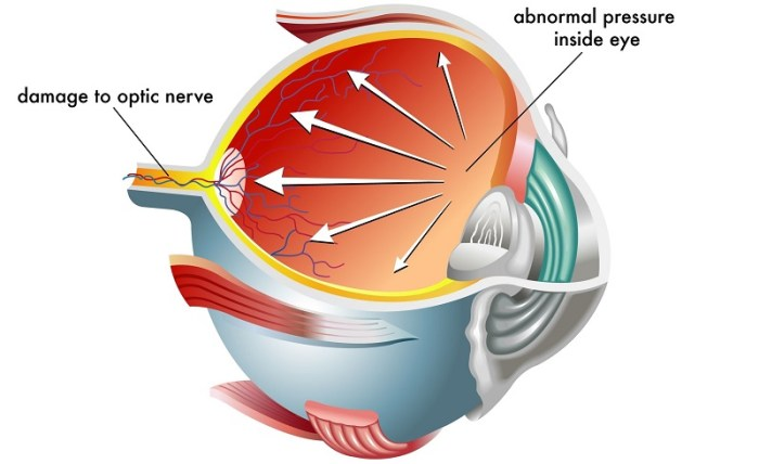 glaucoma, a common cause of hazy vision