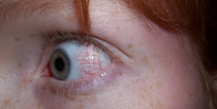 sunburned eyes symptoms