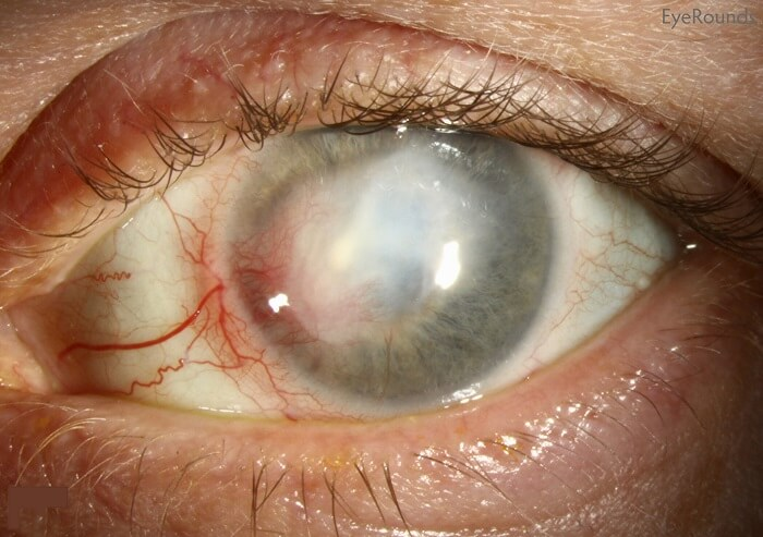 Eye Affected by Herpetic Keratitis