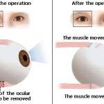 Strabismus Surgery: Procedure, Recovery Time, and Cost