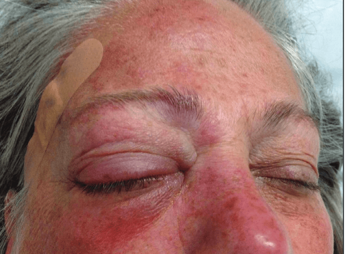 Herpes zoster ophthalmicus complicated by encephalitis