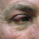 Ocular Rosacea Symptoms and How to Find Relief