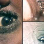 removing ingrown eyelashes through epilation