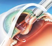 cataracts and surgery