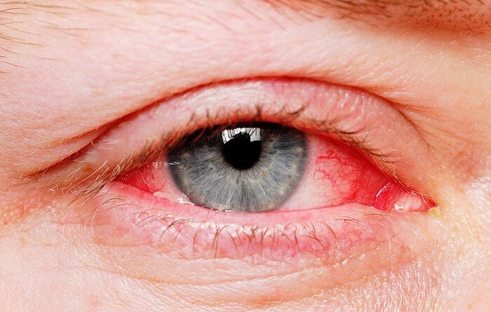 person with red eyes