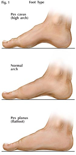 Sizing Feet and Fitting Shoes | Fitting Difficult Feet ...