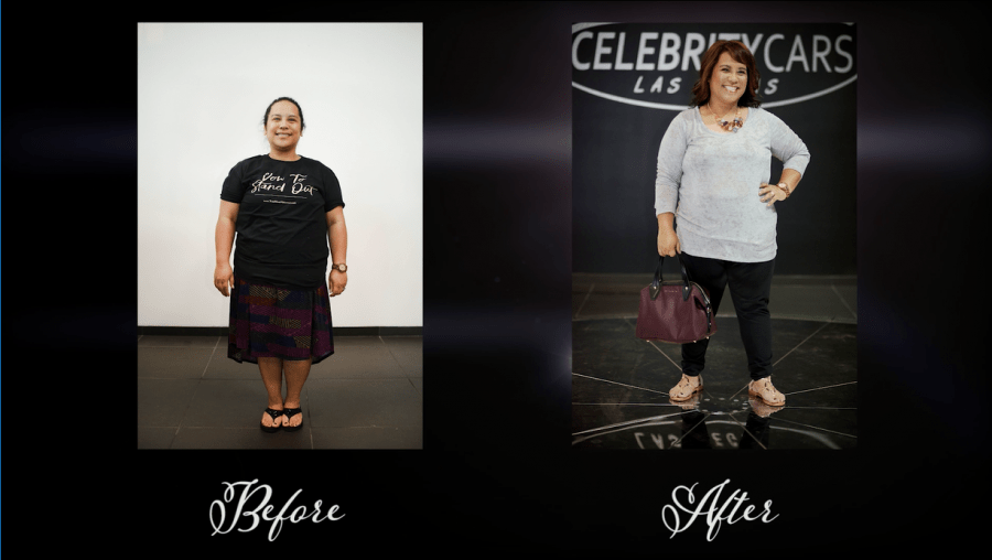 Lysabeth-Luansing-Garcia-Before-and-After-Full-Body-Mommy-Makeover