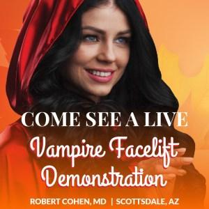 vampire facelift instagram