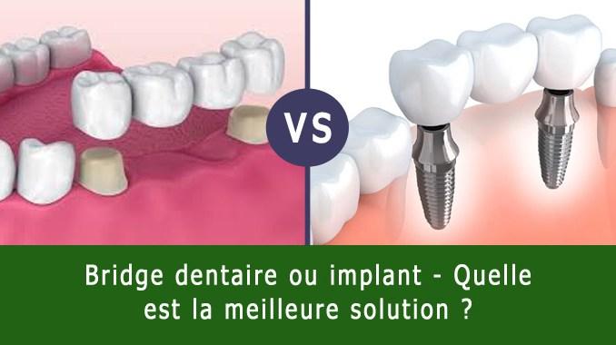 Bridge dentaire ou implant dentaire