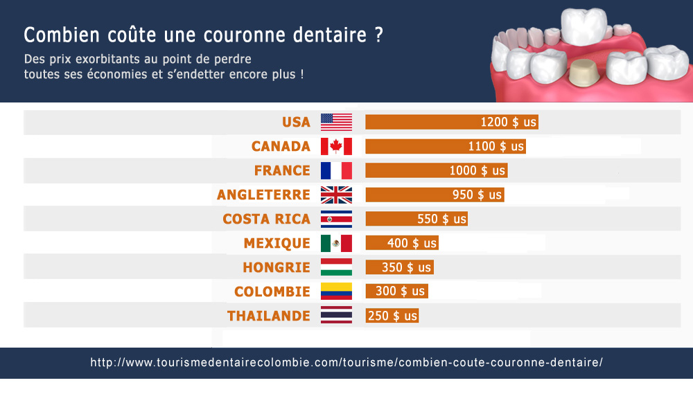 couronnes-dentaires-prix