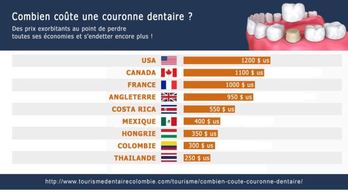 Combien pour une couronne dentaire ?