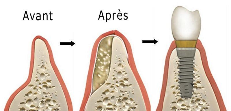 Greffe osseuse pour implant dentaire