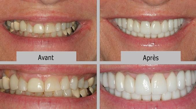 Facette dentaire en composite