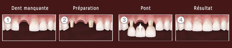 Pose de bridge dentaire