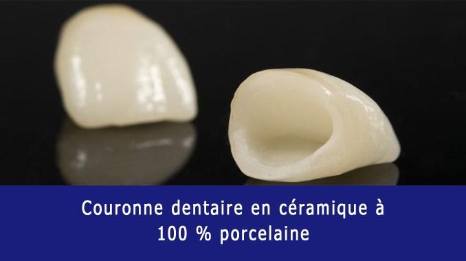 Couronne dentaire en céramique