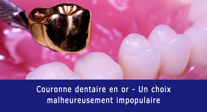 couronne-or