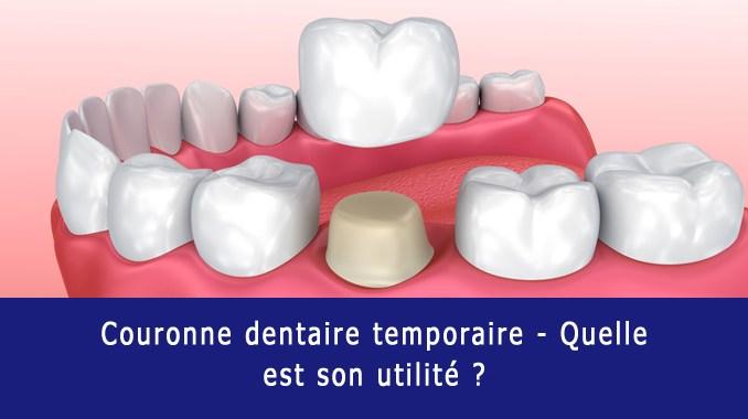 Couronne dentaire temporaire