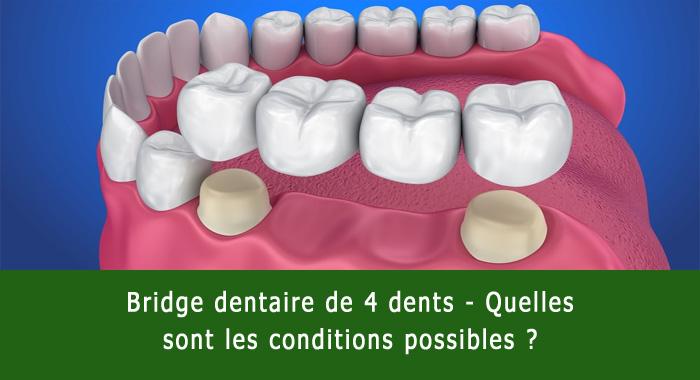 pont-4-dents
