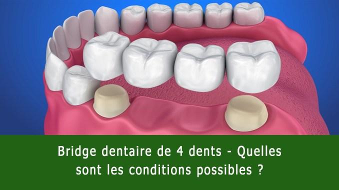 Bride dentaire de 4 dents