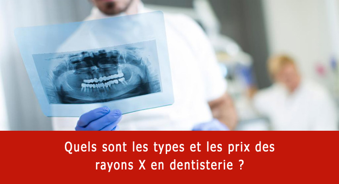 rayons-x-dentaires