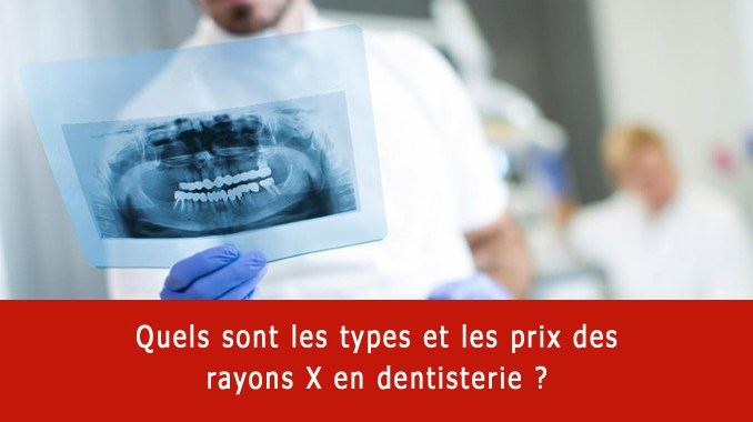 Types et prix rayons x dentaires