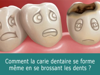Comment la carie dentaire se forme ?