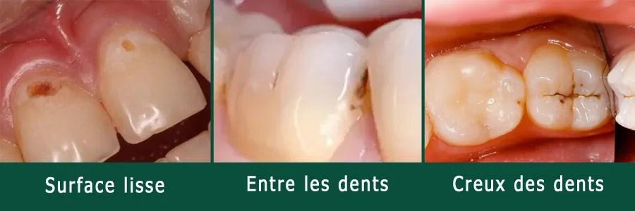 Où se trouve la carie dentaire ?