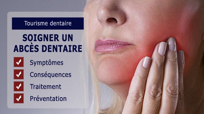 Comment soigner un abcès dentaire