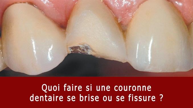 Couronne dentaire qui se brise