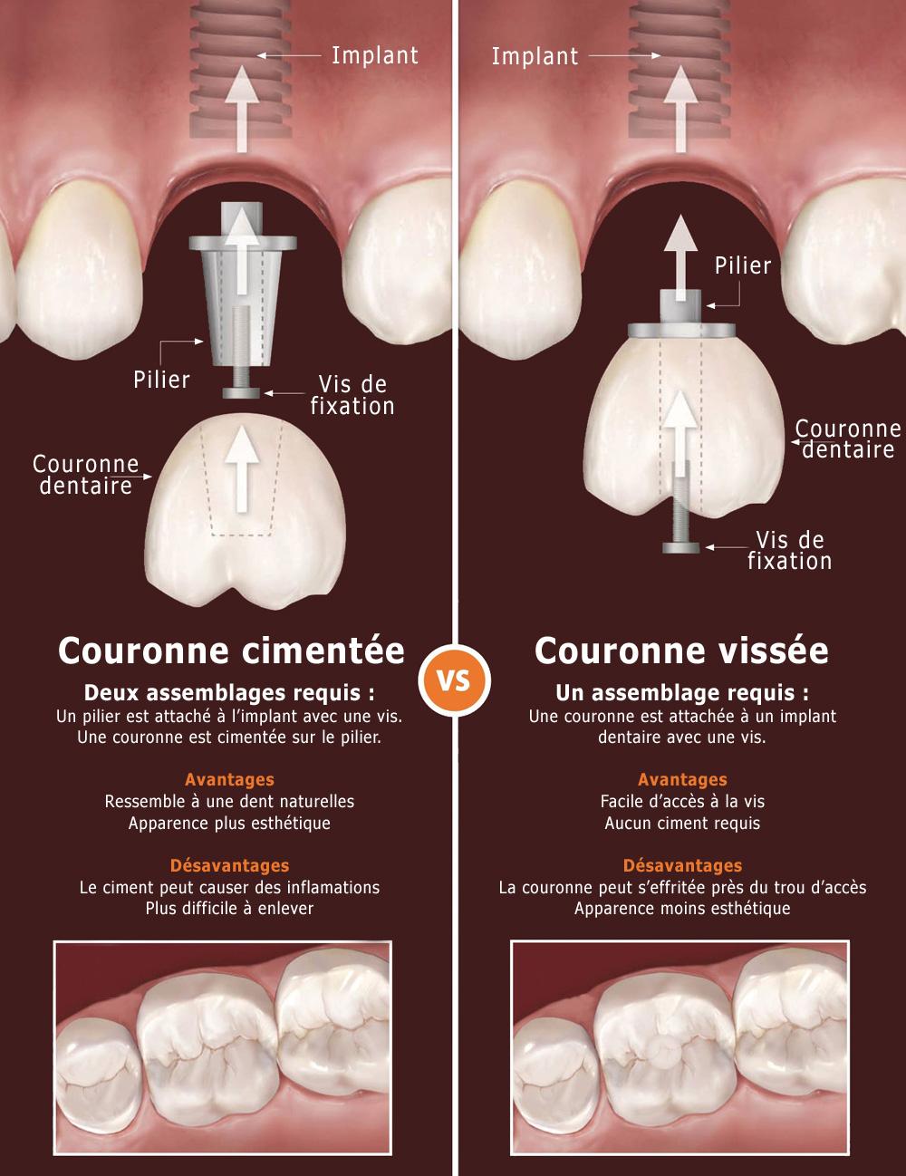 Couronne sur implant dentaire