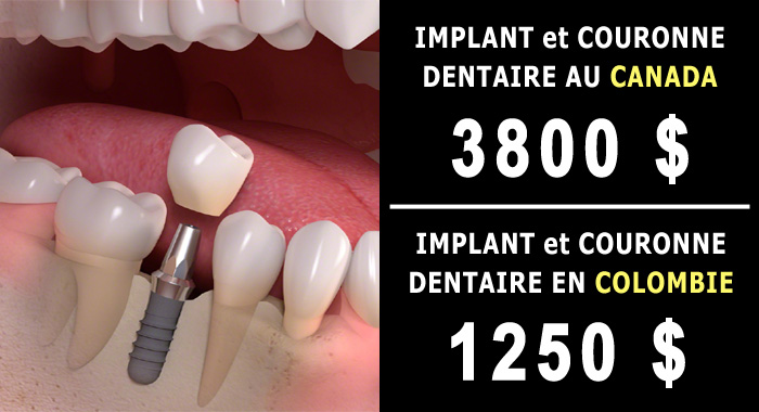 implant-couronne