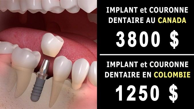 Implant et couronne dentaire