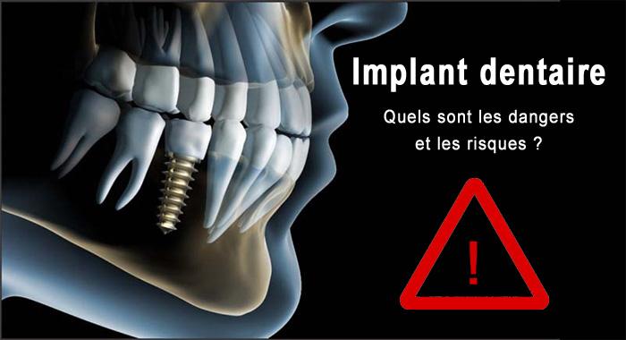 implant-danger