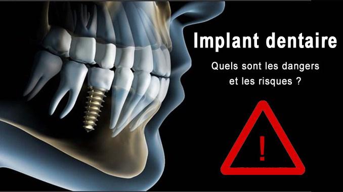 Implant dentaire danger