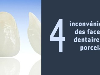 Facette dentaire inconvénient
