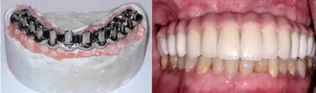 Prothèse fixe permanente en métal et porcelaine