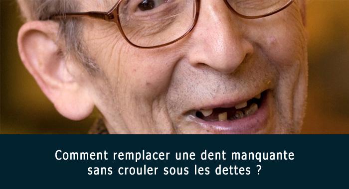 remplacer-dent