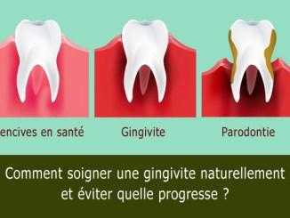 Comment soigner une gingivite
