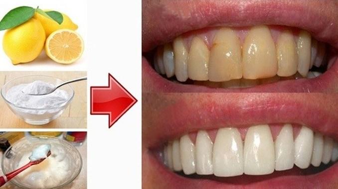 Blanchir les dents naturellement