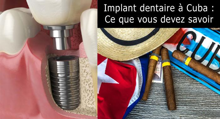 implant-cuba