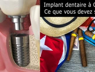 Implant dentaire à Cuba